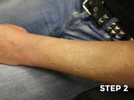 Peeling Scorched Skin Makeup Tutorial - Step 2
