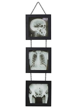 Skeleton X-Ray Wall Accent1